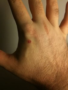 Someone's hand after they had an RFID microchip implanted in it. Some people are starting to do this in Sweden as the country tries to go cashless.